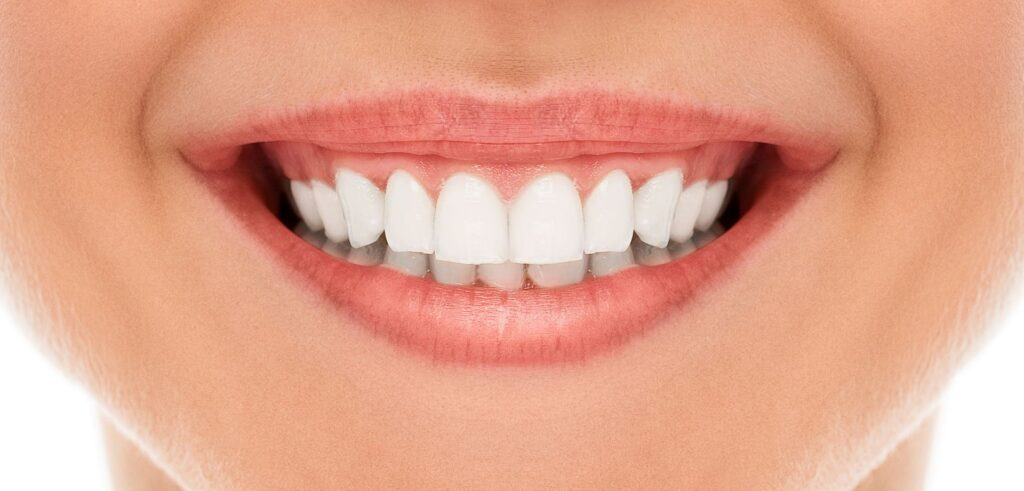 A woman is smiling with perfect white teeth