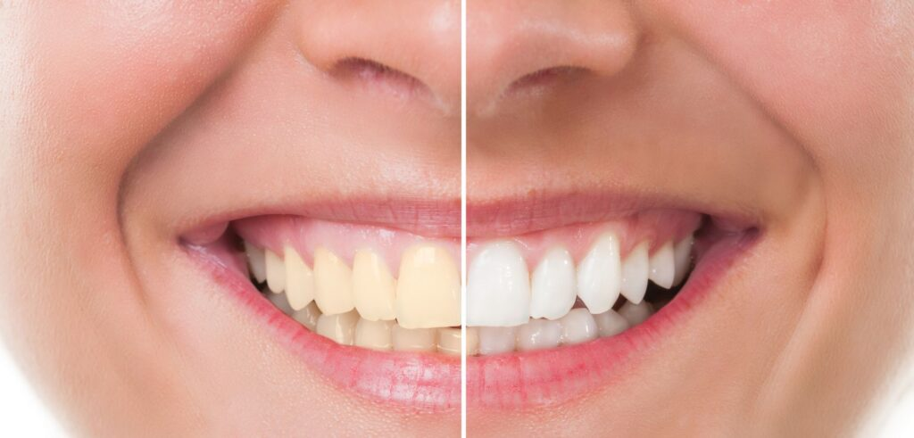 Results of teeth whitening and cleaning sessions