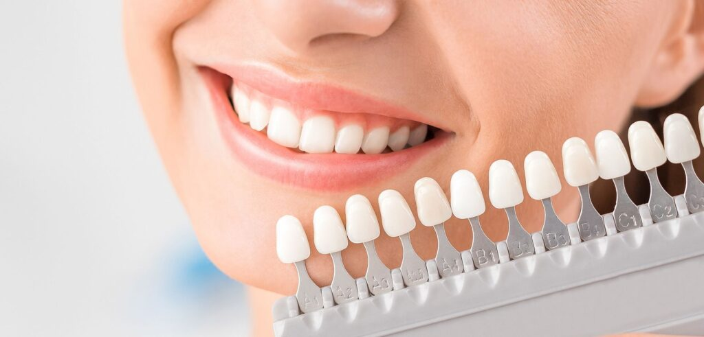 Dental care - Veneers options